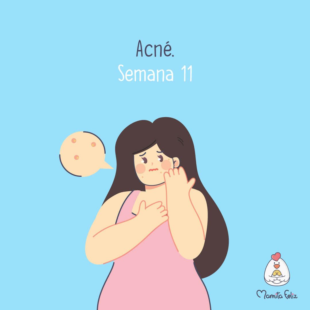 acne en embarazadas